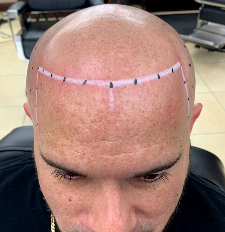scalp micropigmentation florida