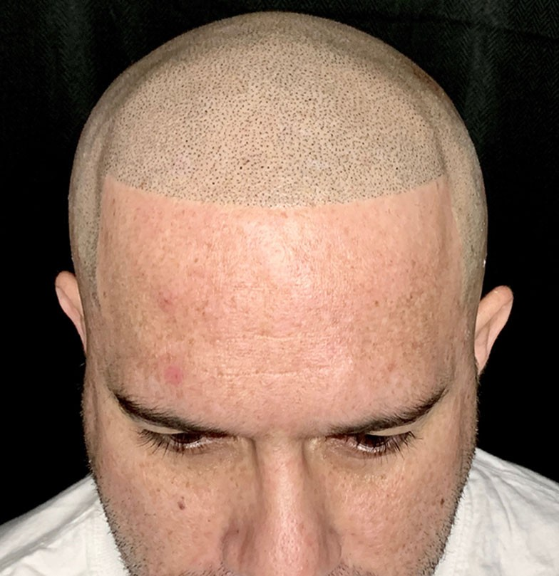 smp-scalp-micropigmentation-after-3